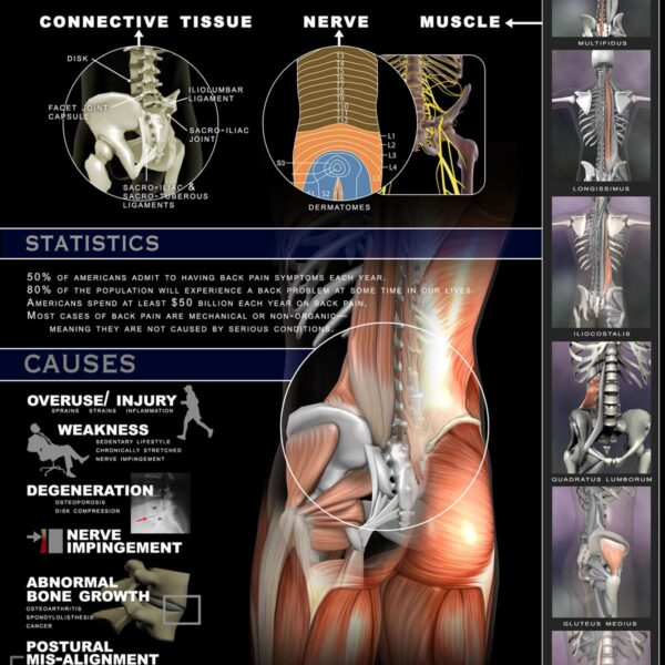 Back Pain - structures involved